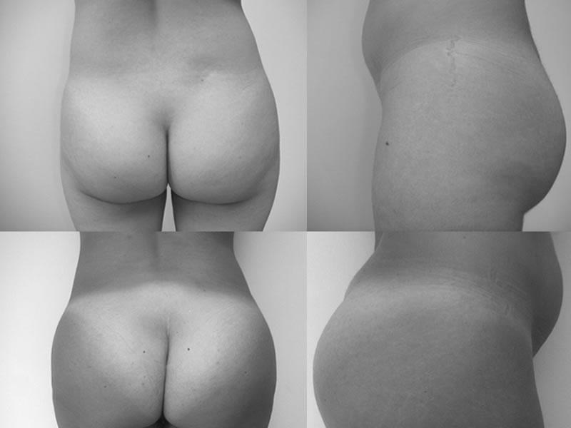 Cirugías de aumento de glúteos
